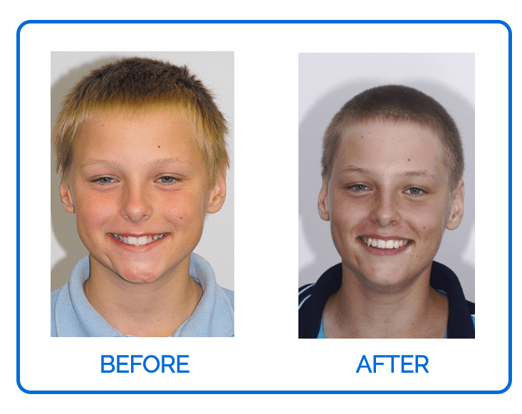 Children Ortho Before & After