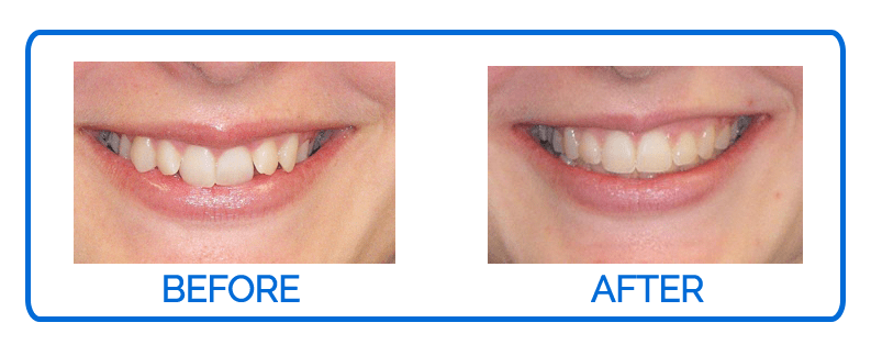 Invisalign Before & After 3 copy
